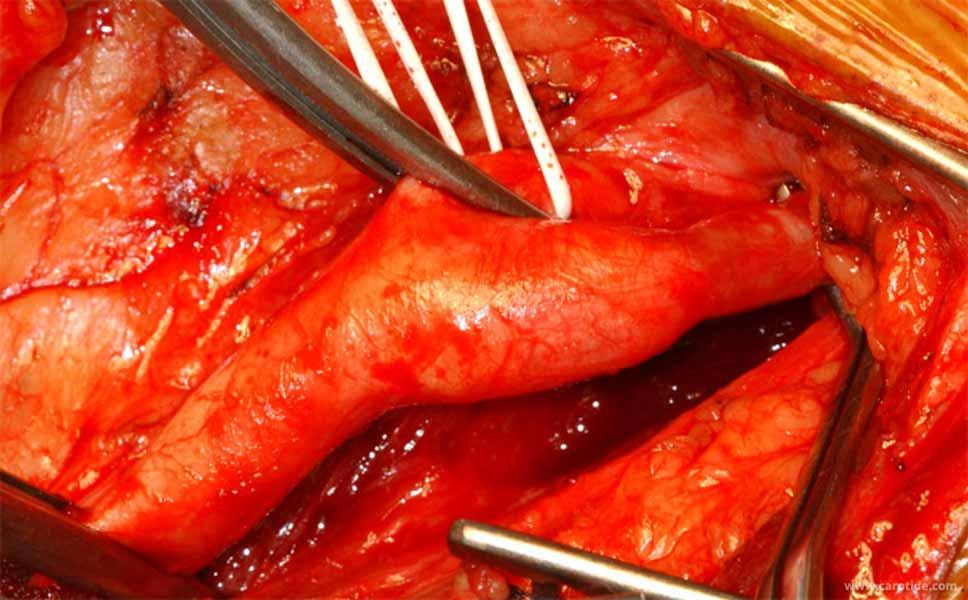 Clampage de la bifurcation carotidienne