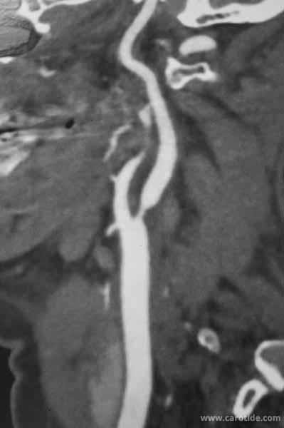 angio-scanner-tsa