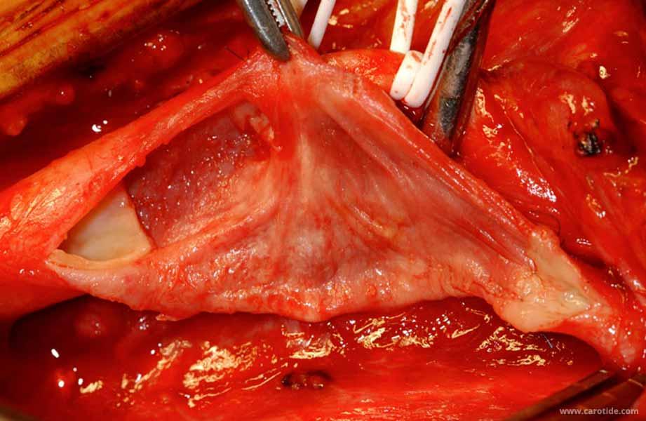 endartériectomie de la carotide avec patch prothétique