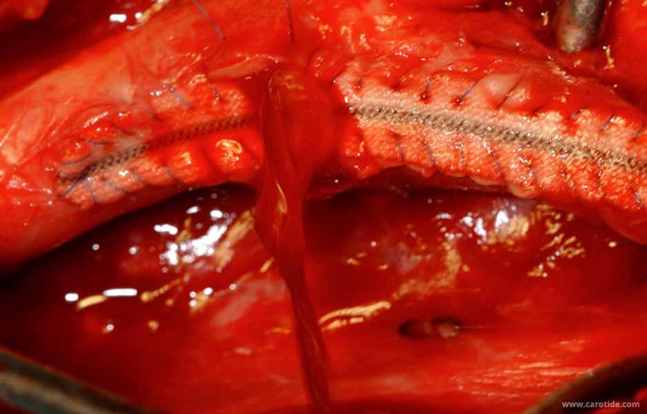 purge au cours d'une endartériectomie avec patch