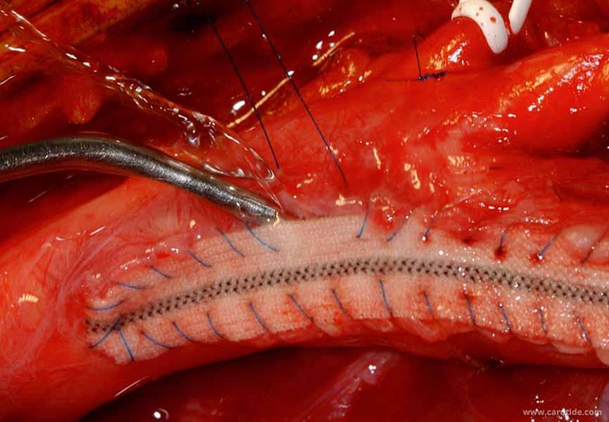 lavage au serum hépariné au cours d'une endartériectomie avec patch