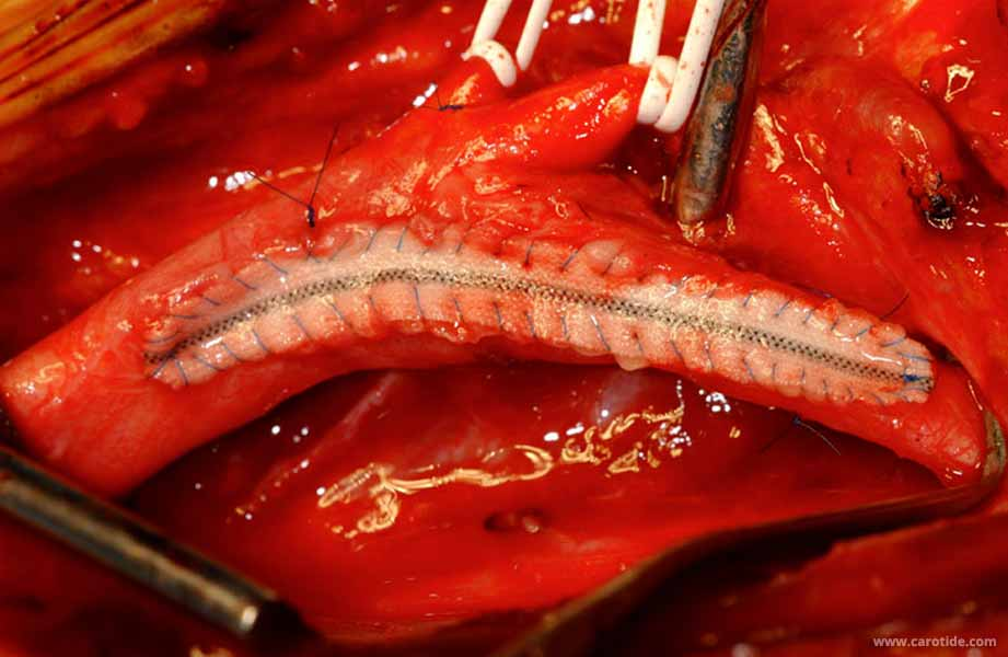 endartériectomie avec patch avant déclampage