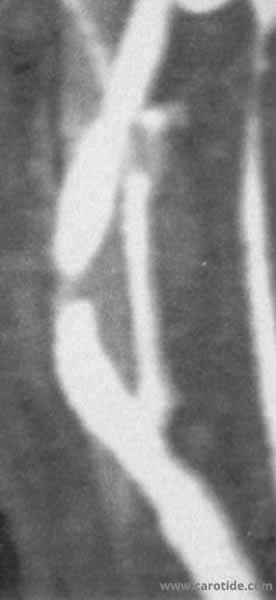 m115_carotid_radiation-03