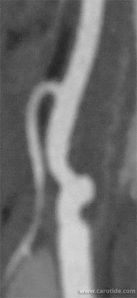 angiographie montrant une occlusion de la carotide interne