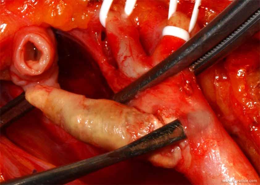 Endartériectomie de la carotide interne par éversion type Van Mahle