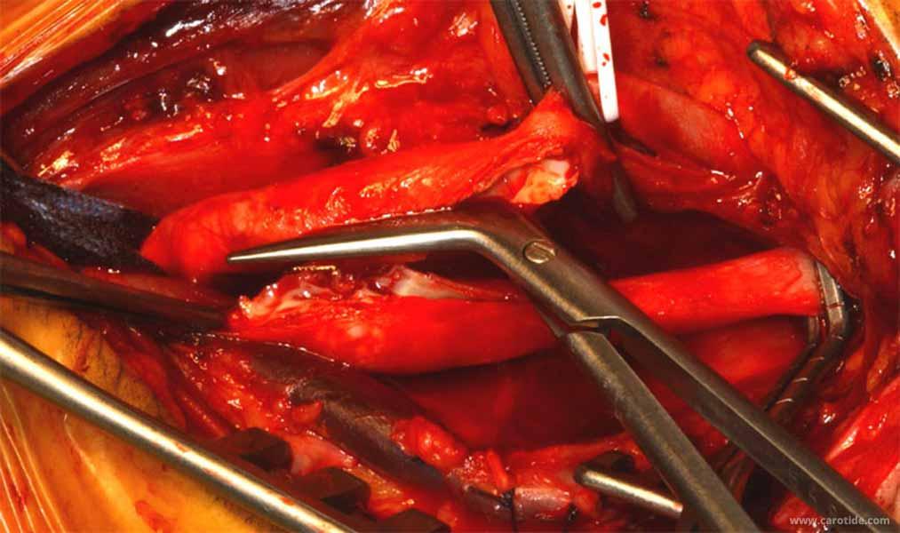 endartériectomie carotidienne avec réimplantation