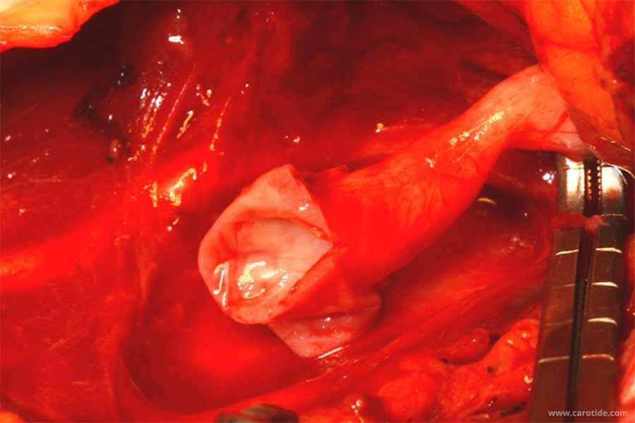 endartériectomie de la bifurcation carotidienne avec réimplantation