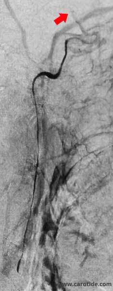 artériographie sélective montrant une quasi occlusion proximale de la carotide interne