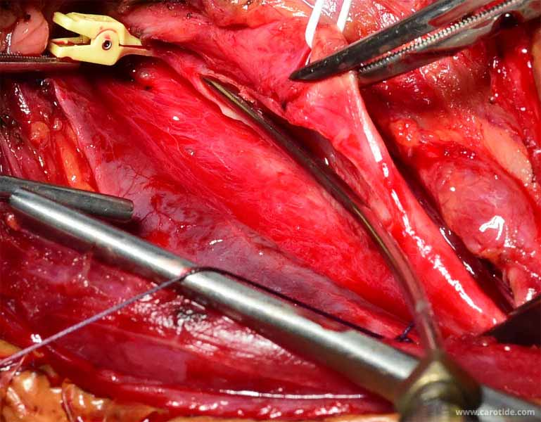 thrombolyse in situ dans la carotide interne