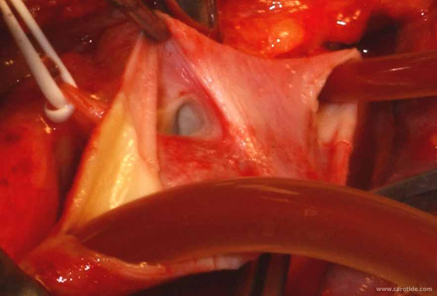 vérification de l'ostium de la carotide externe sous shunt